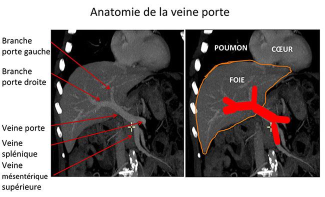 Anatomie Du Foie Et Des Voies Biliaires Chb H 244 Pital Paul Brousse Villejuif