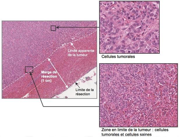 Métastases hépatiques des cancers du sein - CHB - Hôpital ...